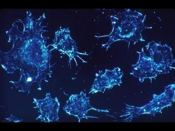 Dieudonné - Le Cancer - Délicieusement terrifiant, mais tellement vrai !